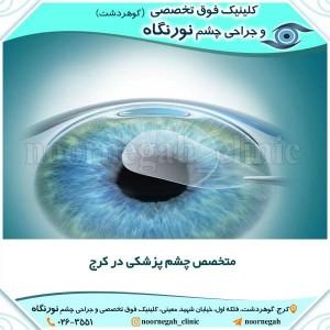 متخصص چشم پزشکی در کرج