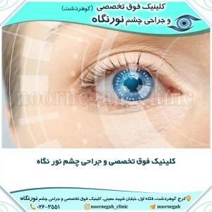 کلینیک فوق تخصصی و جراحی چشم نور نگاه