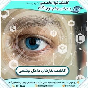 کاشت لنزهای داخل چشمی