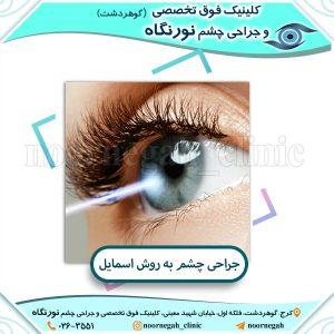 جراحی چشم به روش اسمایل
