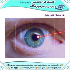 بهترین مرکز چشم پزشکی کرج