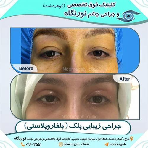 جراحی-زیبایی-پلک-10