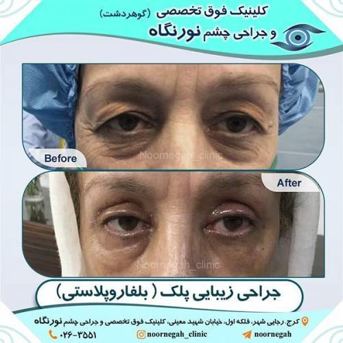جراحی-زیبایی-پلک-6