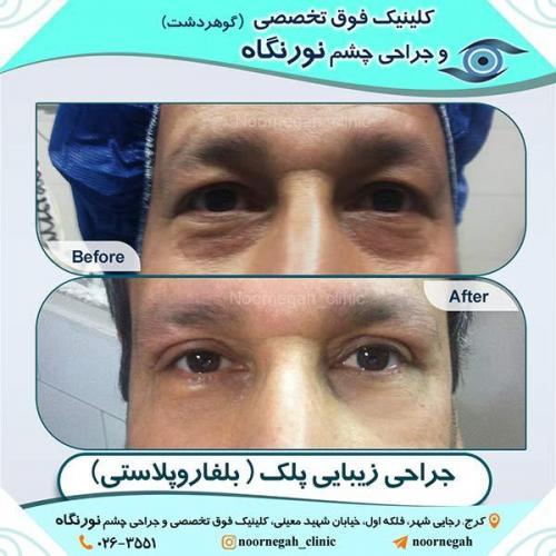 جراحی-زیبایی-پلک-7