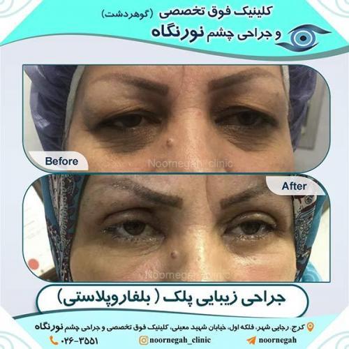 جراحی-زیبایی-پلک-9